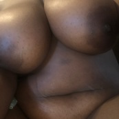 A collection of breast